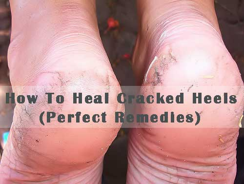How To Heal Cracked Heels (Perfect Remedies)