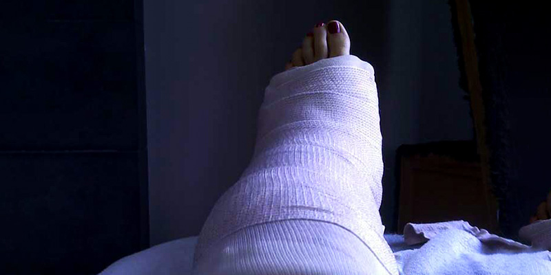 Things To Consider Before Buying The Best Shoes After Foot Surgery