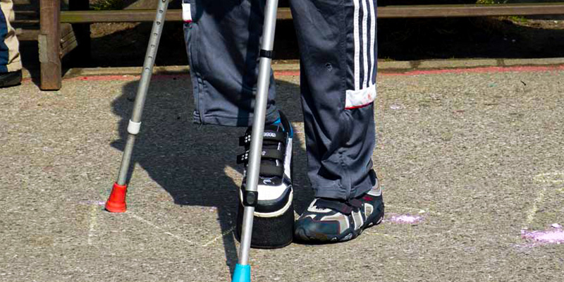 Best Shoes for Broken Foot Recovery Buying Guide
